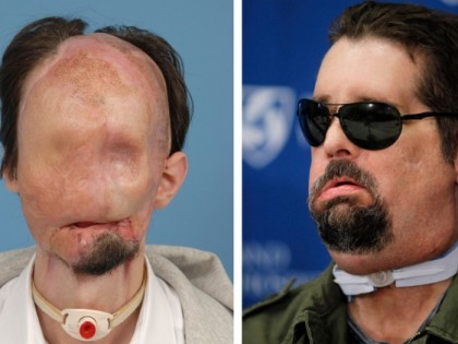 Full Face Transplant Recipient Discusses his Recovery